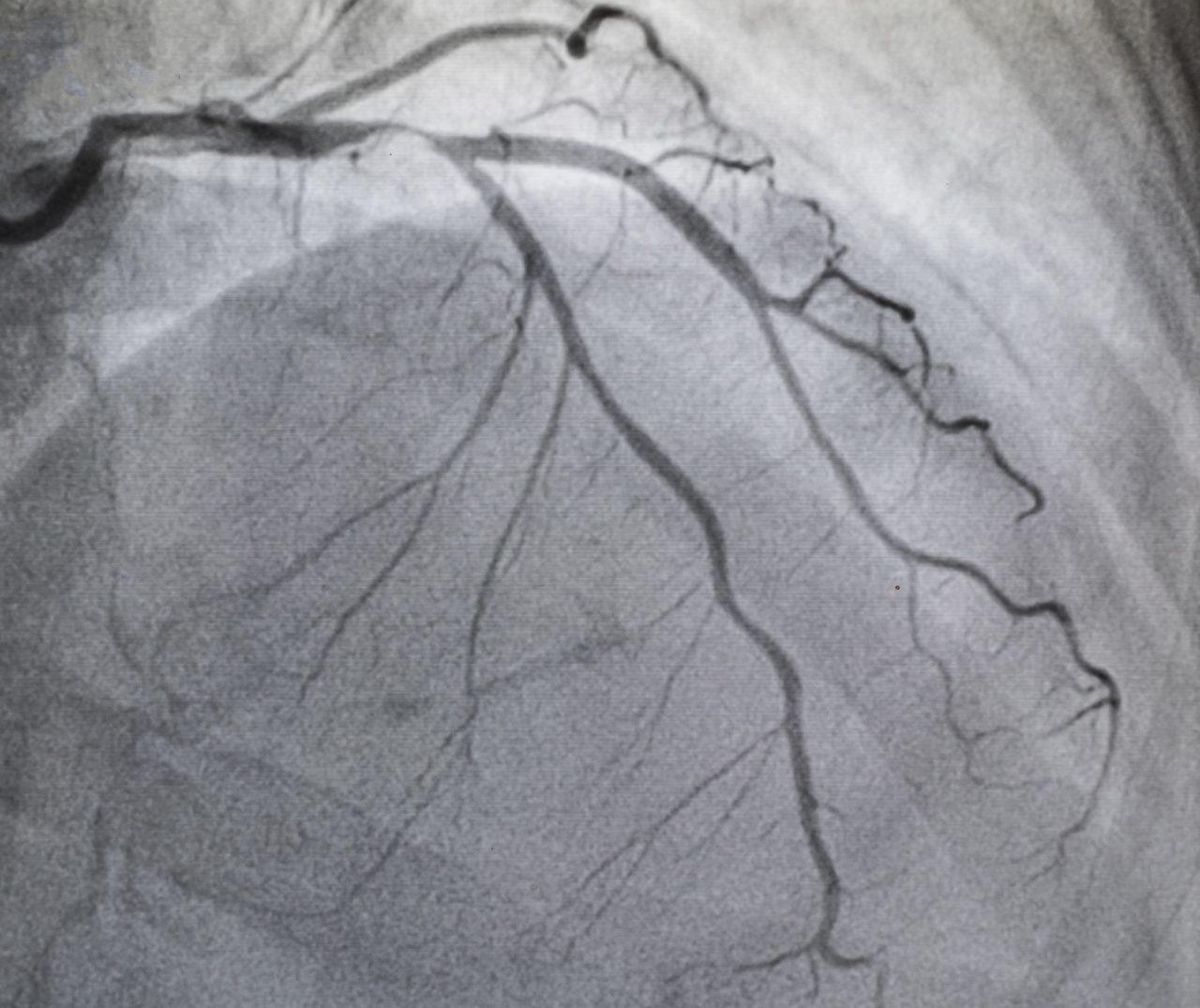 آنژیوگرافی عروق کرونر | دکتر آرش هاشمی | متخصص قلب و عروق | اینترونشنال کاردیولوژیست