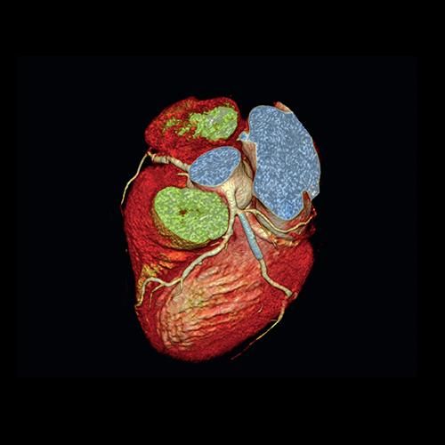 سی تی آنژیوگرافی قلب | دکتر آرش هاشمی