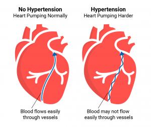 فشار خون در بیماران قلبی و عروقی